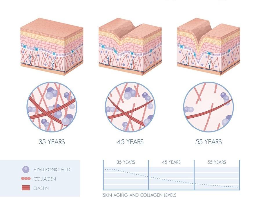 Hyaluronic acid loss